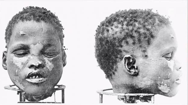 craniu-al-populatiei-herero